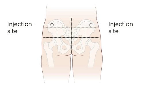 Glute intramuscular sustanon injection site