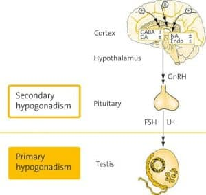 TRT-UK-primary-vs-secondary-hypogonadism