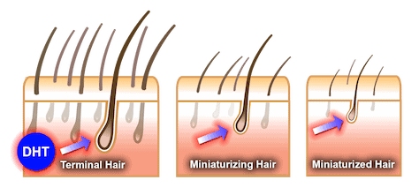 side effects of TRT DHT hair loss