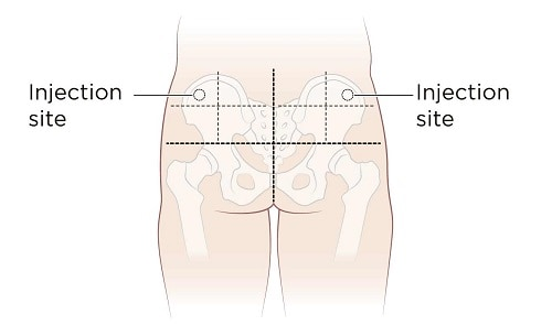Glute intramuscular testosterone injection site
